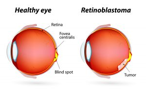 retinoblastoma-eye