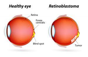 retinoblastoma-eye
